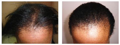 Woman hair loss before and after photo