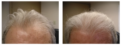 man hair loss before and after photo